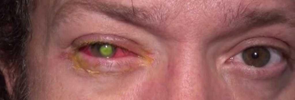 08f8db3784 Aveugle Chad Groeschen, devenu aveugle à cause de ses lentilles de contact